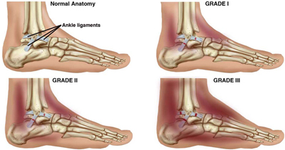 Ankle Images Sprains