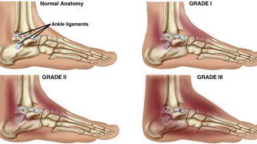 Ankle Sprain Image