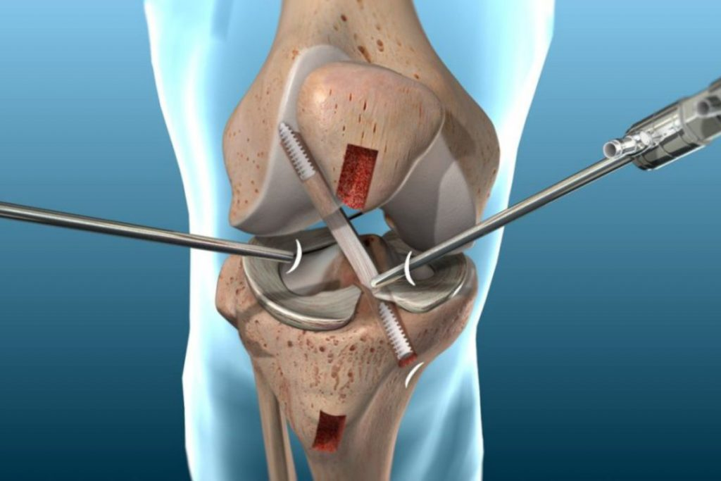 Acl Knee Operate Image