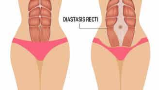 Diastasis Recti Signs
