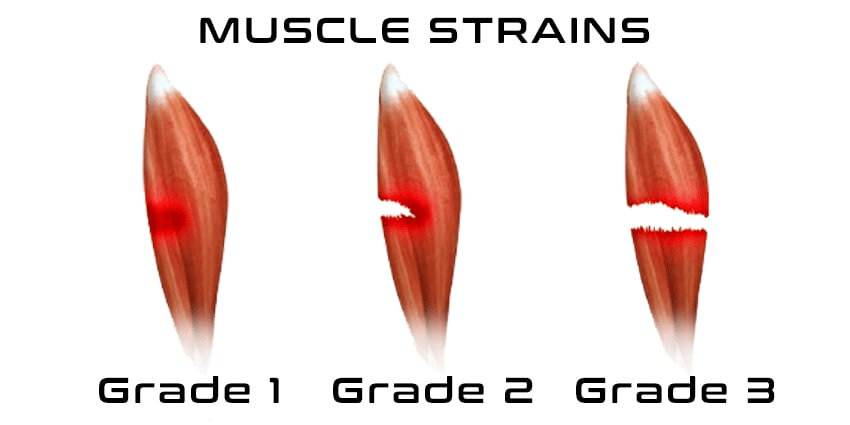 Muscle Strains Grades