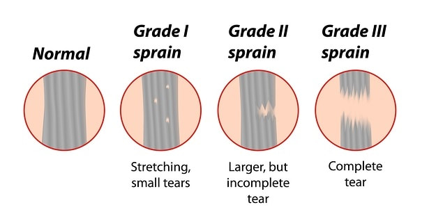 Stages Of Muscle Strain
