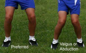 Valgus Knee Stance