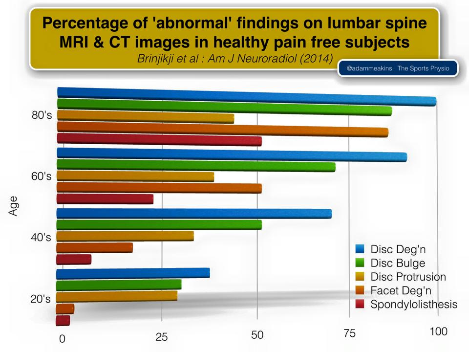 Infographic of MRI and CT findings on lumbar spine