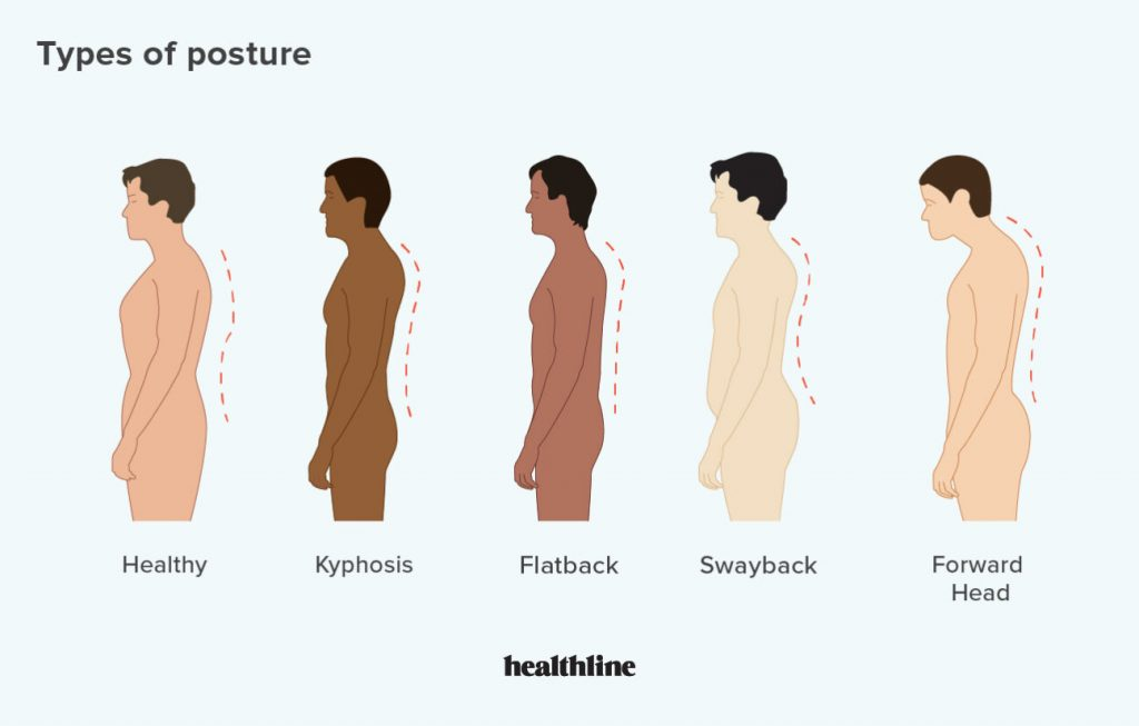 531161 the 4 main types of posture